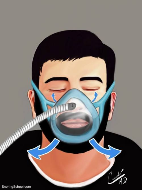 Bearded-man-with-OSA-wearing-a-full-facemask-mask-with-leaking-air-out-the-bottom-and-top-sides-using-CPAP-at-SnoringSchool.com_